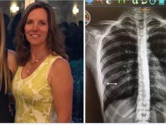 piercing radiografia