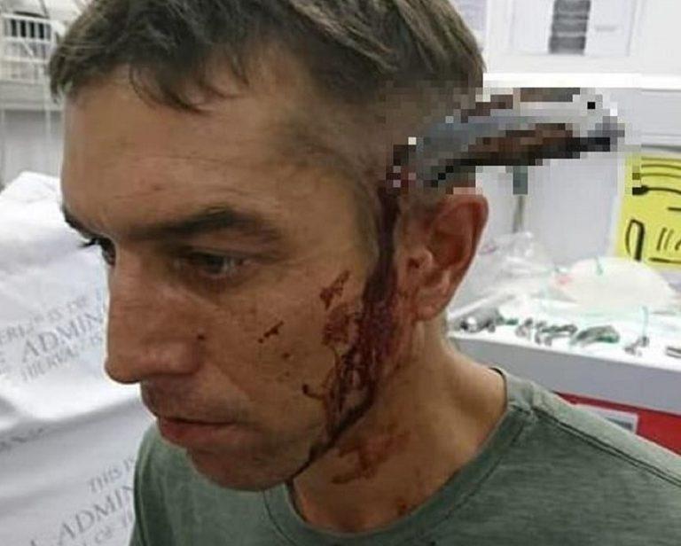 """Ciclista arriva in ospedale con un coltello in teste: """"c'è un dottore?"""""""