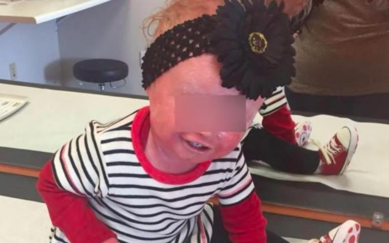 Anna, la bimba con la malattia che le fa staccare la pelle