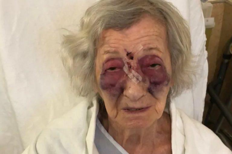 Anziana sopravvissuta all'Olocausto picchiata sul bus