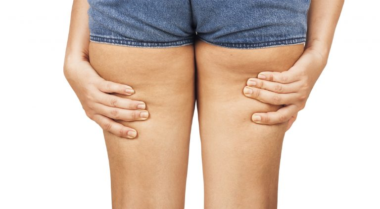 Come eliminare la cellulite.