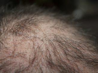 Perdita capelli uomo: perché avviene? Cause e rimedi efficaci