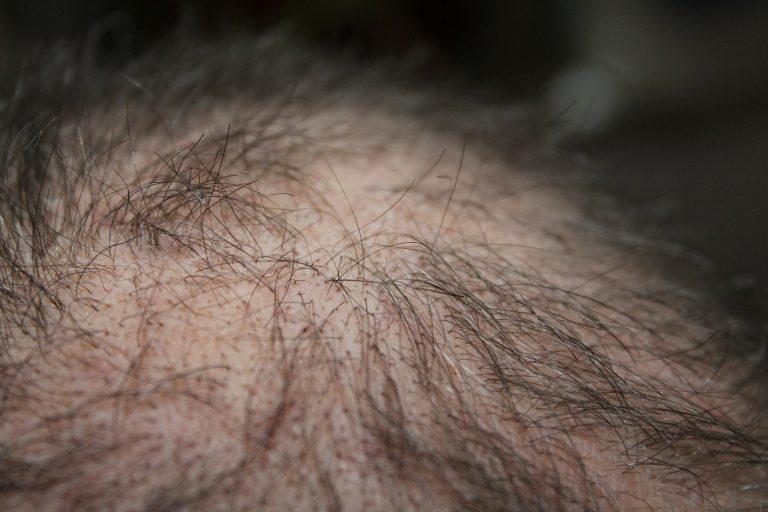 Come infoltire i capelli contro la calvizie in modo naturale