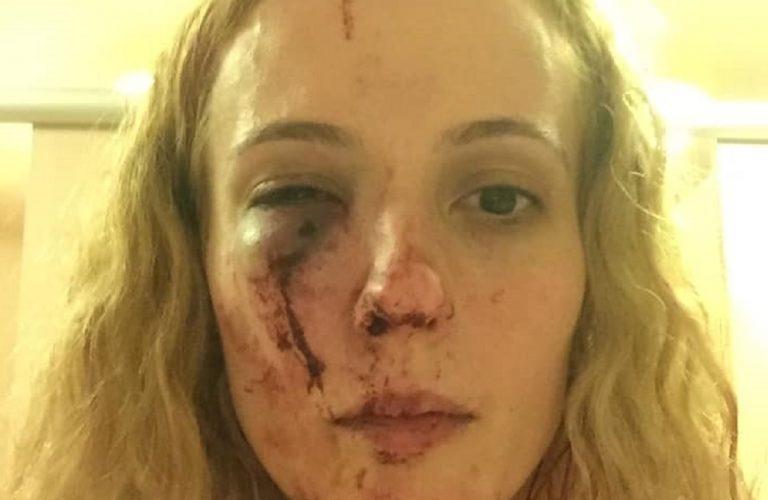 madre picchiata baby gang