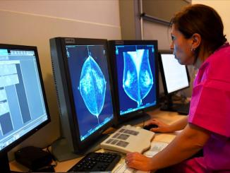 Tumore al seno, i geni che predicono il rischio di metastasi