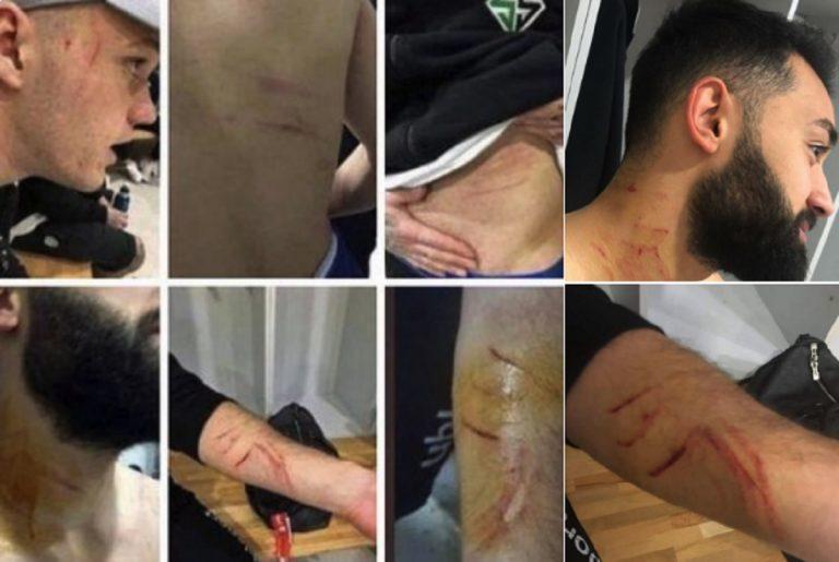 Turchia, ferisce gli avversari con una lama