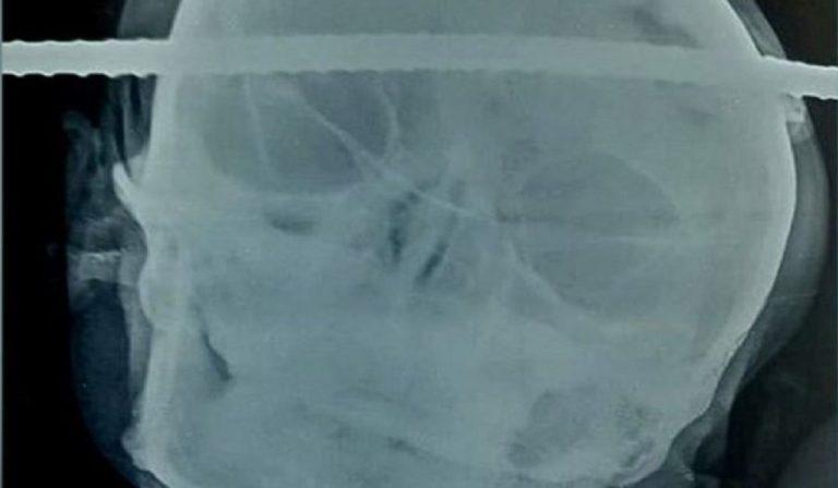 sbarra d'acciaio cranio