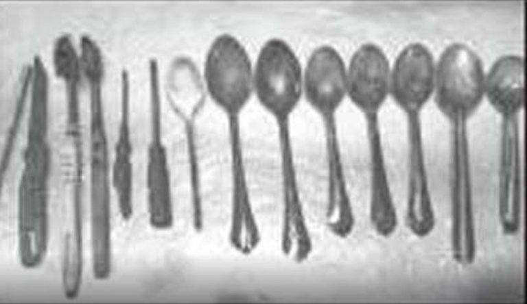 medici trovano posate in intestino umano