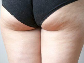 Cellulite edematosa.
