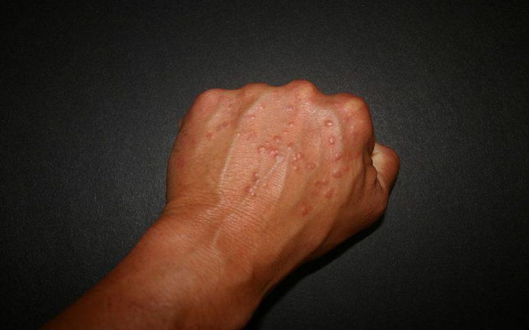 mani punti rossi