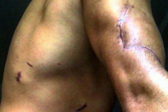 cicatrici bettarini
