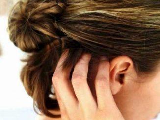 dermatite seborroica: cause e rimedi