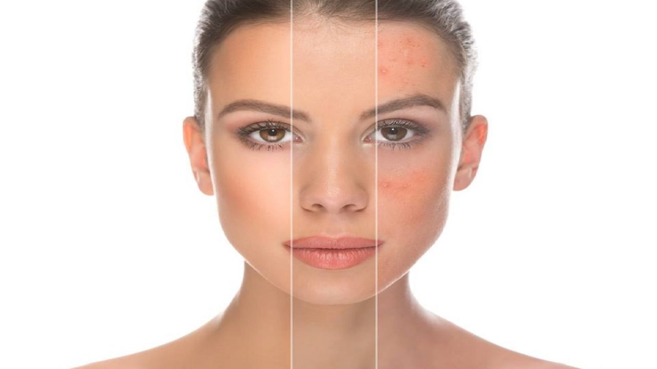 macchie rosse in faccia e pelle secca
