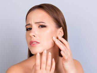 dermatite al viso: i rimedi naturali