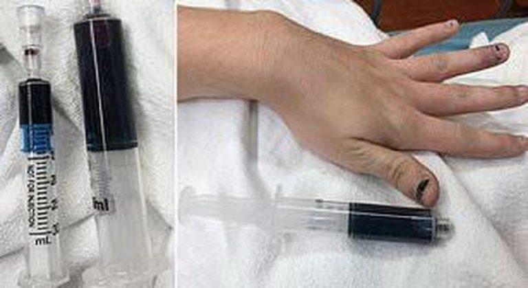 Sangue Blu dopo un antidolorifico
