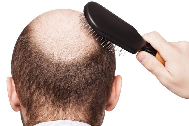 ricrescono la perdita di capelli dalla perdita di peso