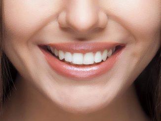 Come avere denti bianchi a casa.