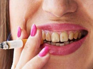 Denti macchiati.