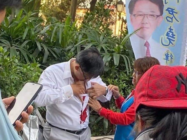 Hong Kong:accoltellato deputato pro-Cina