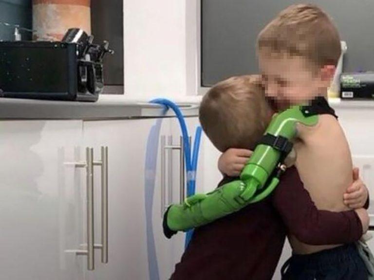 Jacob braccio bionico