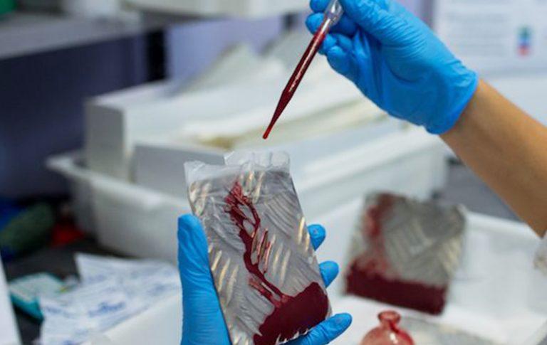 studentessa-hiv-laboratorio