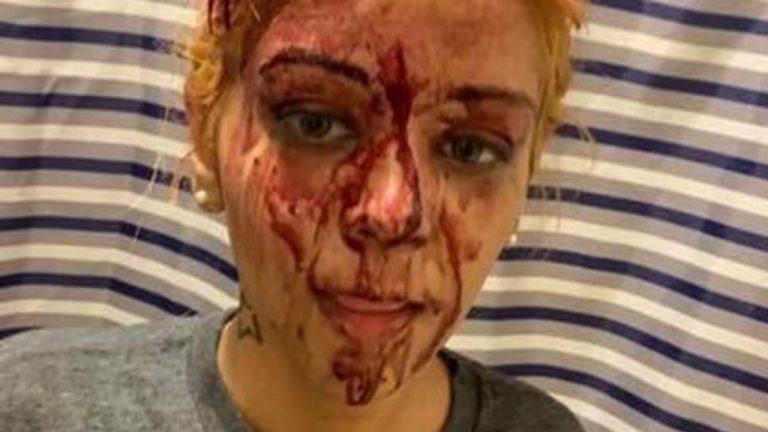 donna picchiata dal fidanzato