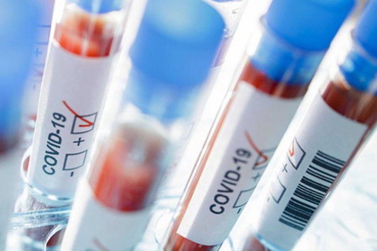 coronavirus come e dove si trasmette