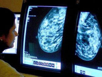 Coronavirus, rischio aumento morti per tumori in Inghilterra