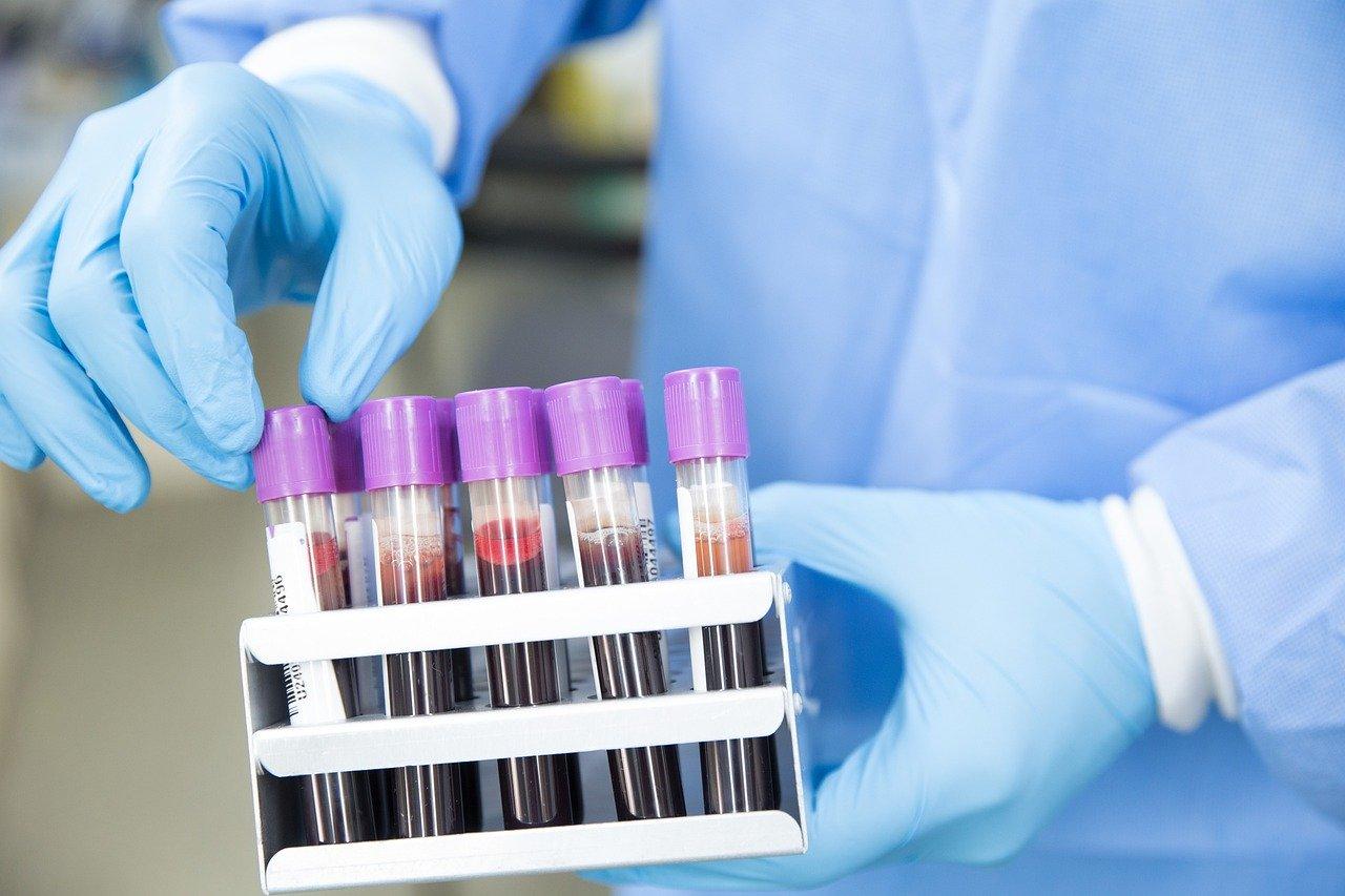 coronavirus campioni di sangue
