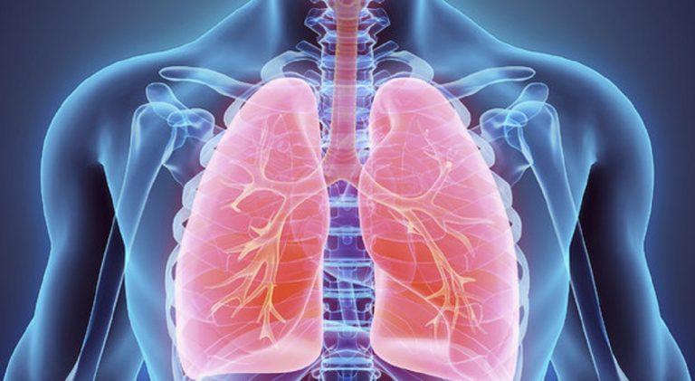 coronavirus danni polmoni