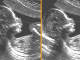 Post anti-aborto di Pro Vita e Famiglia