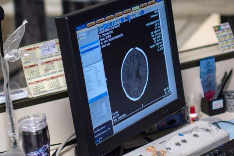 coronavirus danni cervello