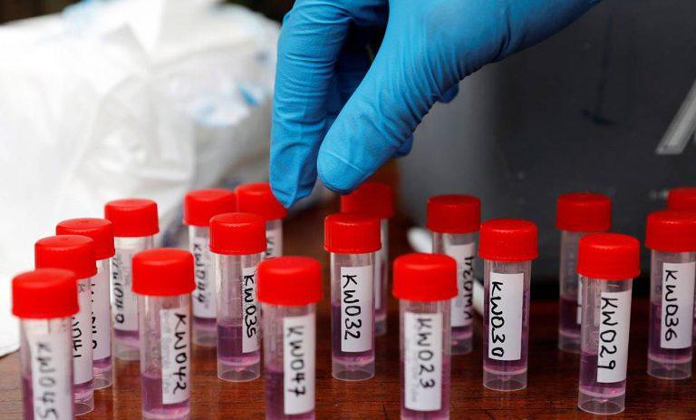 """Coronavirus, per il professor Tritto è: """"Chimera creata in laboratorio"""""""