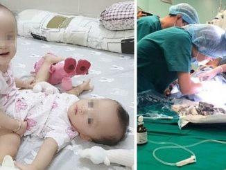 gemelle intervento
