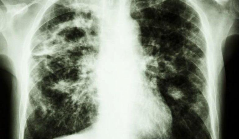 Regno Unito, neonato morto per tubercolosi: si teme il contagio