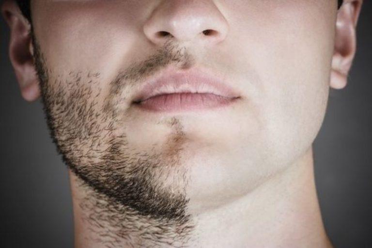alopecia della barba