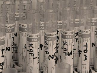 Il materiale presente nel laboratorio della ricerca per il farmaco contro il covid