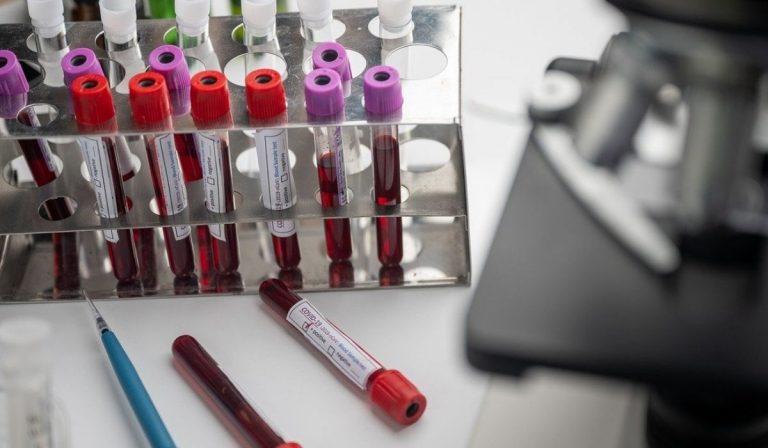 covid guariti vaccino
