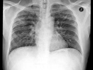 Coronavirus: oltre 800 radiografie Covid, Cdi condivide piattaforma Ai