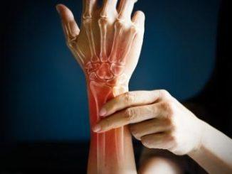 Farmaci: artrite reumatoide, rimborsabilità Aifa per trattamento AbbVie