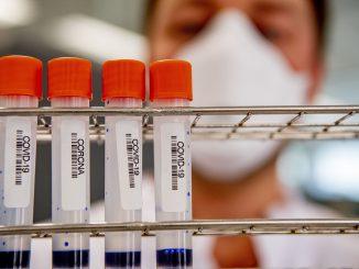 Covid, individuate cellule che rivelerebbero la gravità della malattia