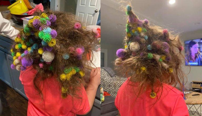 Palline nei capelli