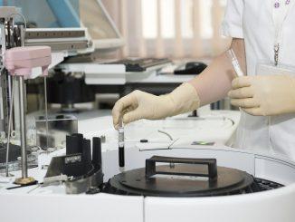 focolaio covid al reparto di oncologia di lecce