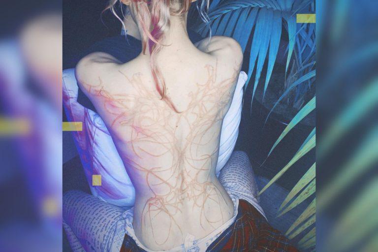 Cicatrici Aliene