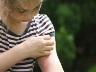 come sgonfiare le punture di zanzare