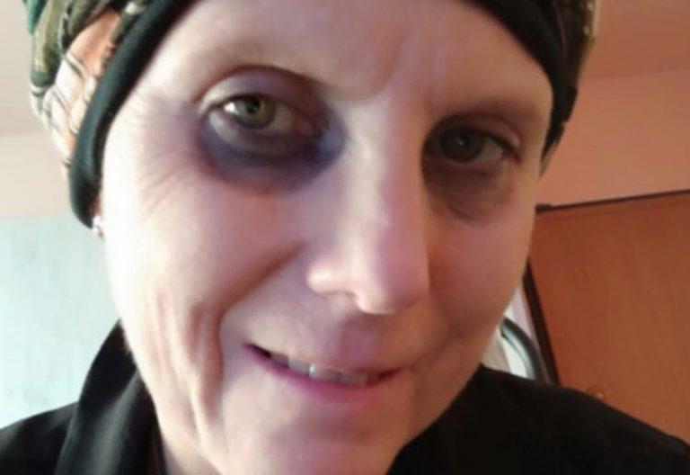 infermiera tumore madre