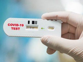 test rapidi covid