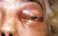 Un paziente affetto da mucormicosi allo stadio iniziale