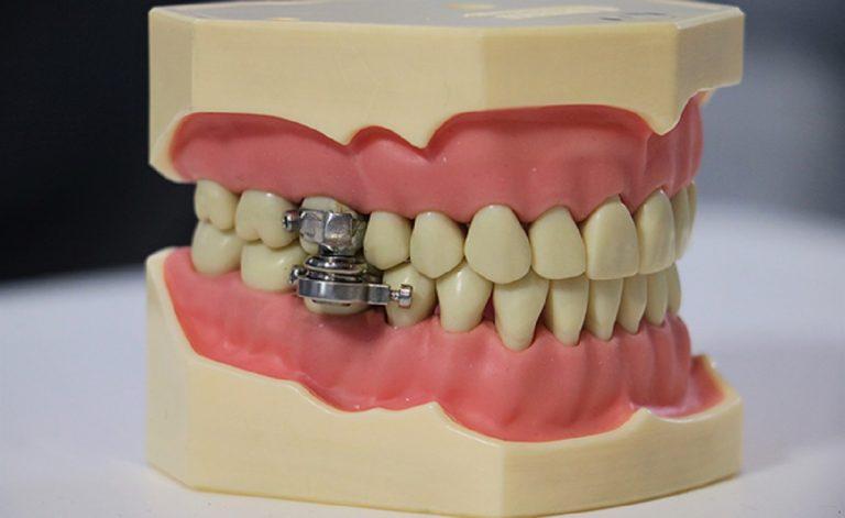 Il magnete blocca mandibola