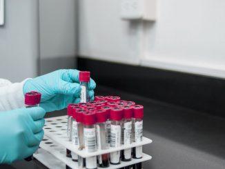 Bilancio Coronavirus 13 luglio 2021